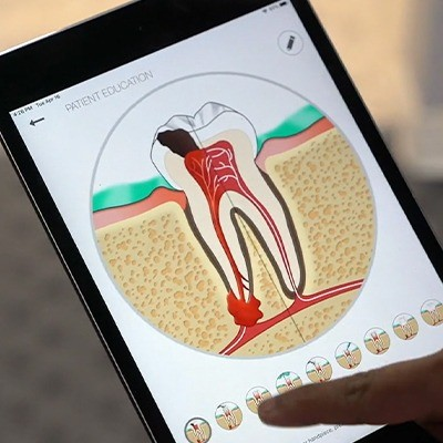Animation of the inside of a damaged tooth