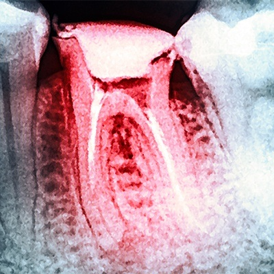X-ray of damaged tooth