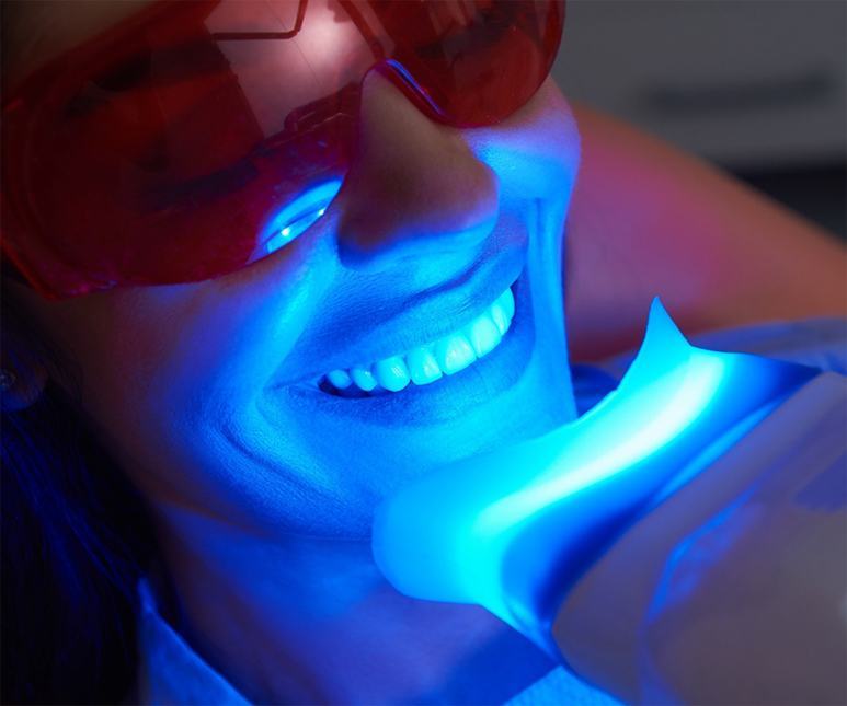 person getting their teeth whitened