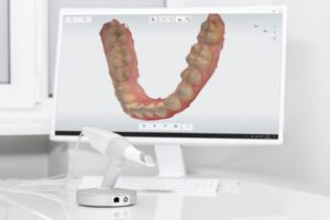 Scanning wand and digital impression at dentist in Frisco's office