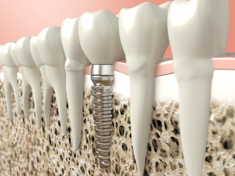 Diagram showing how dental implants in Frisco integrate with bone